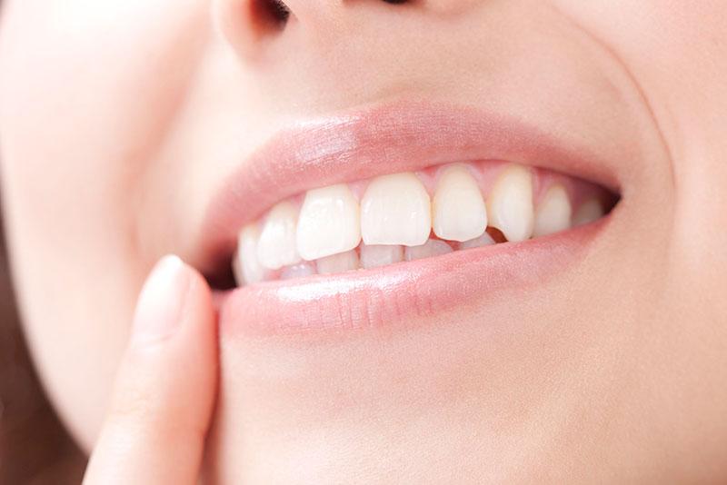 にいつま歯科 審美治療