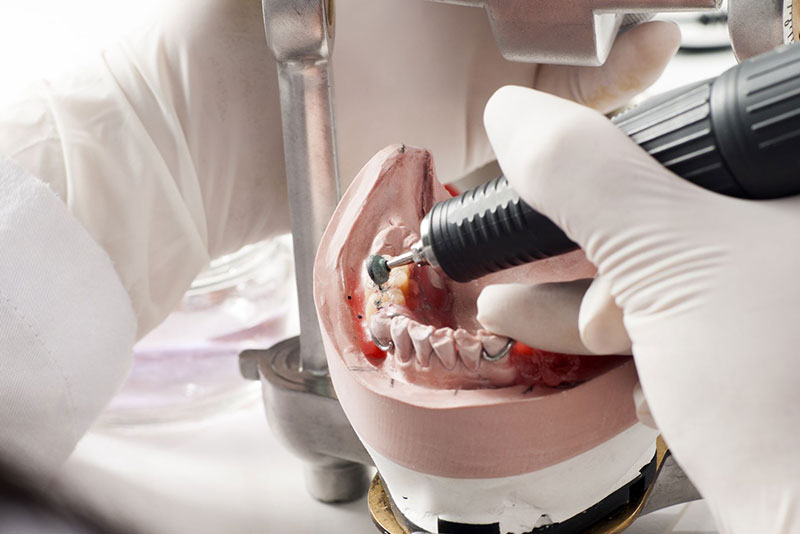 にいつま歯科 審美治療 信頼できる歯科技工所