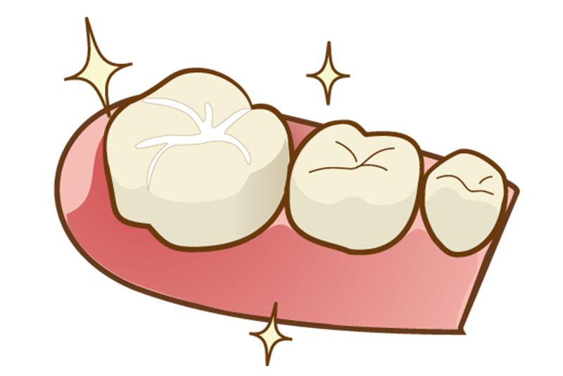 にいつま歯科 小児歯科 シーラント