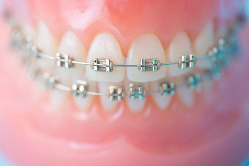 にいつま歯科 小児歯科 小児歯科矯正