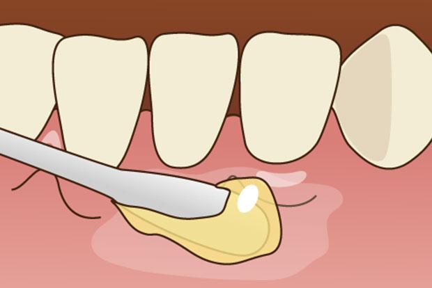 にいつま歯科 一般歯科 表面麻酔