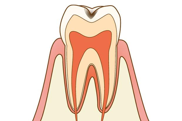 にいつま歯科 一般歯科 c1