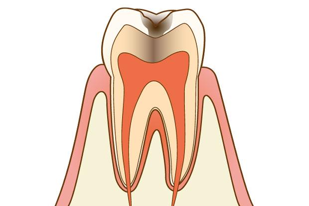 にいつま歯科 一般歯科 c2