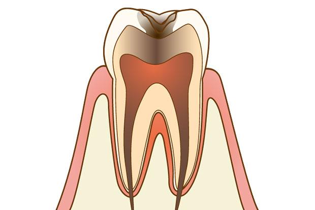 にいつま歯科 一般歯科 c3