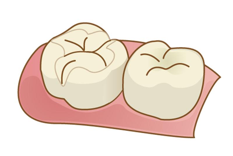 にいつま歯科 一般歯科 詰め物と被せ物