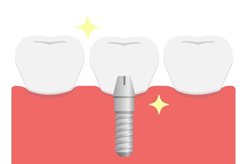 にいつま歯科 インプラント