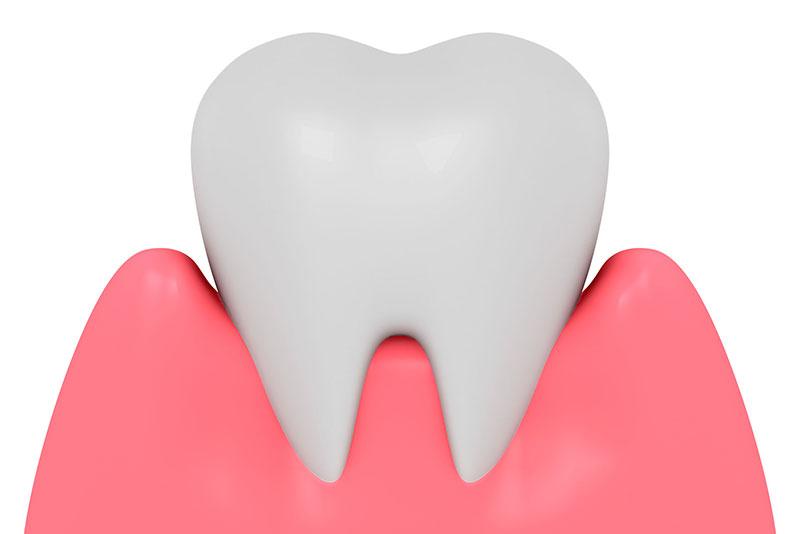 にいつま歯科 ガムピーリング