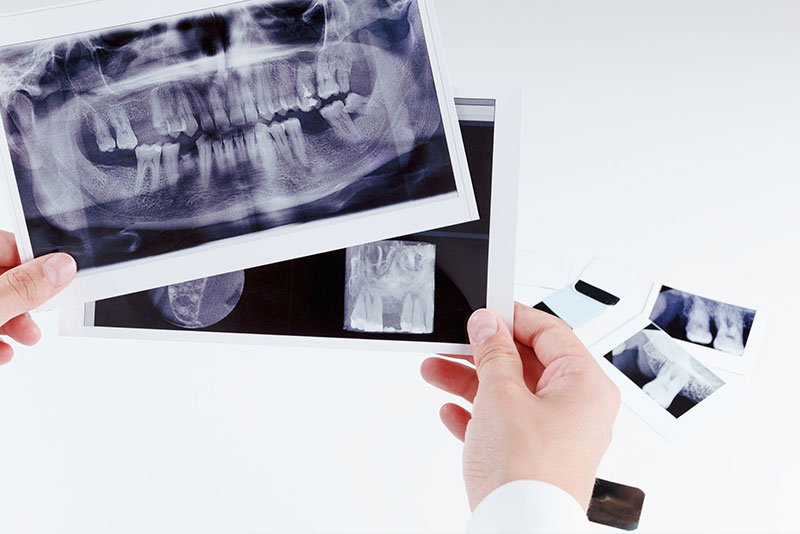 にいつま歯科 根管治療 根管治療の診断