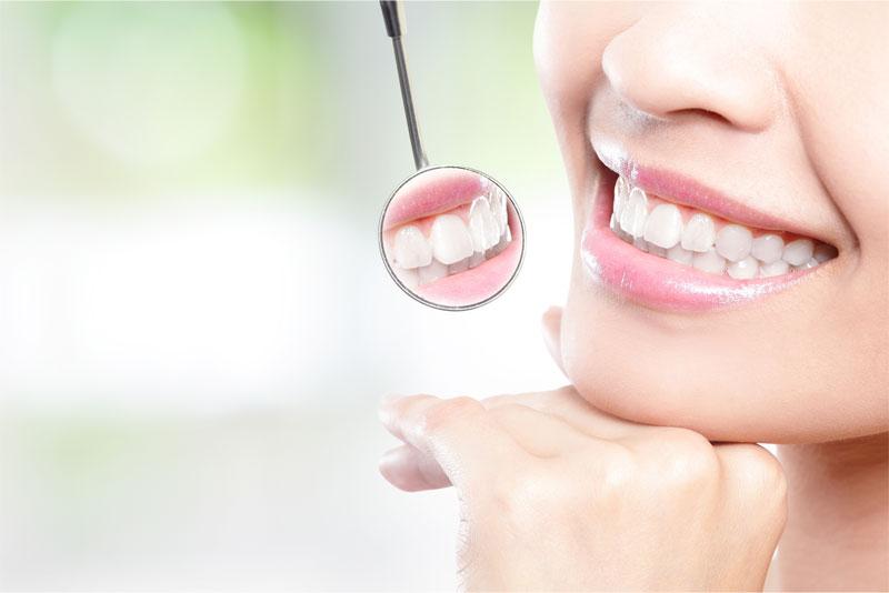 にいつま歯科 ホワイトニング