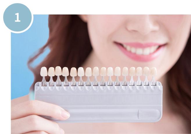 にいつま歯科 ホームホワイトニングの手順 ホワイトニング前の色を撮影