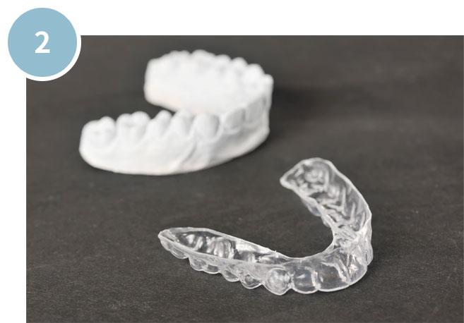 にいつま歯科 ホームホワイトニングの手順 マウスピース制作