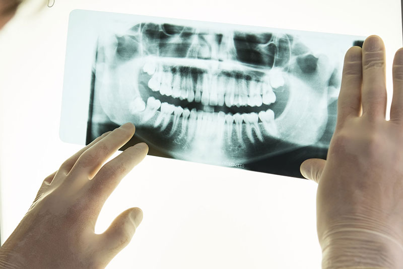 にいつま歯科 親知らず 診査・診断